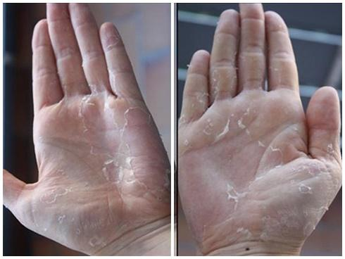 Bong da bàn tay bàn chân - Bệnh gì?