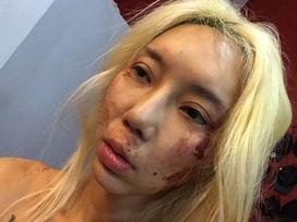 Sự thật đau lòng đằng sau ảnh bị bạo hành của nữ DJ nổi tiếng