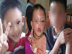 Ảnh HOT trong tuần: Phẫn nộ khi trong 1 tuần có tới 4 đứa trẻ bị bạo hành dã man, 1 bé tử vong