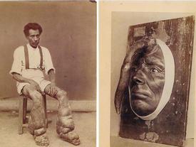 8 hiện tượng quái dị nhất thế giới được lưu giữ trong lịch sử khiến giới y học 'đau đầu'