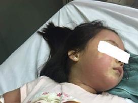 Cảnh báo: Bé gái 5 tuổi nổi mẩn khắp người sau khi uống trà sữa