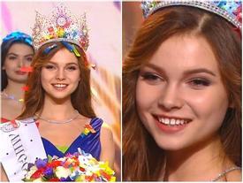 Vừa đăng quang, tân Hoa hậu Nga 2018 đã bị soi 'răng thưa như răng lược'