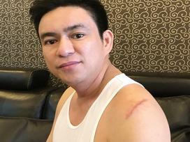 Bác sĩ Chiêm Quốc Thái bị nhóm người mang hung khí chém trọng thương ở phố đi bộ