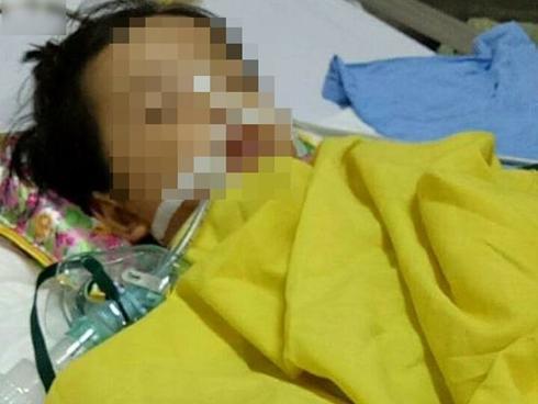 Bé gái 20 tháng tuổi bị rạn hộp sọ, hôn mê sâu, liệt nửa người sau khi đến trường mầm non 3 ngày