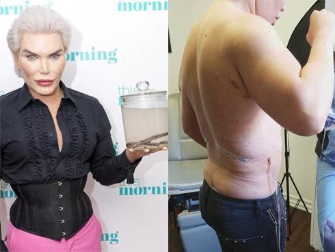 'Búp bê Ken' gây shock khi vẫn sở hữu vòng eo lớn bất thường dù đã phẫu thuật cắt bỏ 4 xương sườn