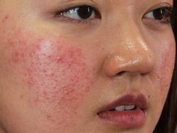 Mách bạn 5 mẹo nhỏ để chữa trị bệnh dị ứng da một cách hiệu quả
