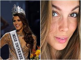 Dù là tuyệt sắc giai nhân, Hoa hậu Hoàn vũ Iris Mittenaere vẫn để lộ da mặt chi chít tàn nhang