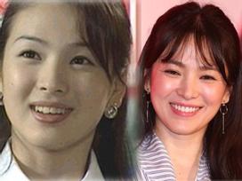 Không riêng gì Song Hye Kyo, nhiều Sao cũng thành mỹ nhân nhờ chỉnh răng