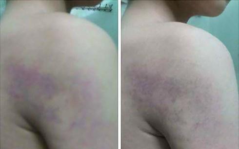 Nghi vấn học sinh lớp 1 bị giáo viên bạo hành bầm tím cơ thể