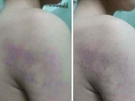 Hà Nội: Giáo viên bị tố đánh học sinh lớp 1 bầm tím