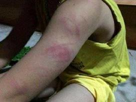 Bé trai lớp 1 không đọc thông, viết thạo bị cô giáo đánh bầm cánh tay
