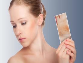 Mách bạn 8 cách phòng tránh bệnh da trong mùa hè