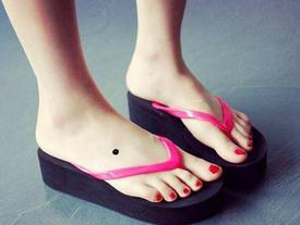 Nốt ruồi ở bàn chân mang ý nghĩa gì?