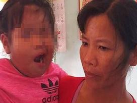Vụ bé 3 tuổi liệt dây thần kinh số 7 nghi do cô giáo đánh: Cô giáo tạm nghỉ việc