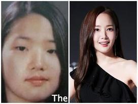 Lý do khiến Park Min Young trở thành ca 'dao kéo' thành công nhất làng giải trí Hàn Quốc