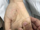 Chẩn đoán chó cắn mình chết vì viêm đường hô hấp, nữ bác sĩ thú y tử vong vì bệnh dại