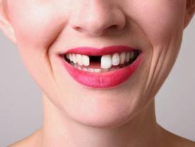Nằm mơ thấy mình bị gãy răng là điềm lành hay dữ?