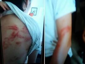 Vụ bố bị tố cáo bạo hành con đẻ: 'Tôi có dùng gậy nhôm đánh con'
