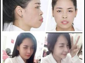 Sau 3 năm tìm đến dao kéo, nhan sắc của 'hotgirl thẩm mỹ' Nam Định bây giờ ra sao?