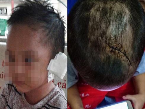 Bé 3 tuổi nghi bị mẹ và 'cha dượng' bạo hành