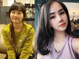 'Đập mặt xây lại' quá thành công, cô gái 23 tuổi kiếm ngay được tấm chồng như ý