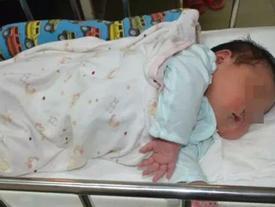 Mang thai em bé 'khổng lồ', mẹ suýt mất mạng vì vỡ tử cung, con chui vào khoang bụng