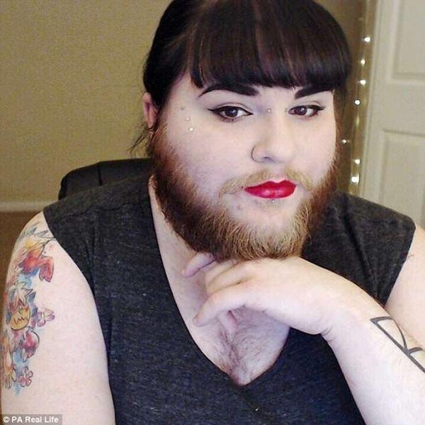 Mắc bệnh lạ, cô gái trẻ bị mọc râu lởm chởm khắp mặt-1