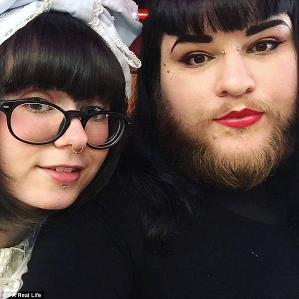 Mắc bệnh lạ, cô gái trẻ bị mọc râu lởm chởm khắp mặt-2