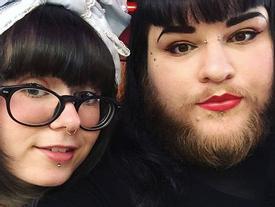Mắc bệnh lạ, cô gái trẻ bị mọc râu lởm chởm khắp mặt