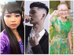 Quang Anh The Voice Kids thay đổi ngỡ ngàng sau phẫu thuật thẩm mỹ-11