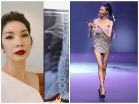 Xót lòng trước những căn bệnh nghề nghiệp mà Xuân Lan cùng loạt mẫu Việt mắc phải