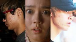 Mỹ nam, mỹ nữ xứ Hàn lắm lúc cũng 'ngượng chín mặt' vì da dẻ sần sùi nhiều mụn nhìn thấy ghê