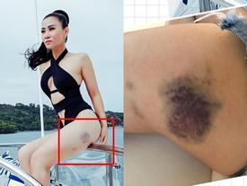 Nói vết bầm tím như bị đánh trên chân, Thu Minh phân trần: 'Ai muốn tin là bị chồng đá thì tùy'