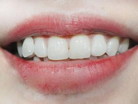 Cuộc đời bạn có bao nhiêu thăng trầm, sướng khổ buồn vui, nhìn hàm răng là biết