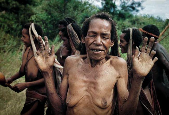 Hủ tục cắt ngón tay man rợ của bộ tộc Dani ở Indonesia-3