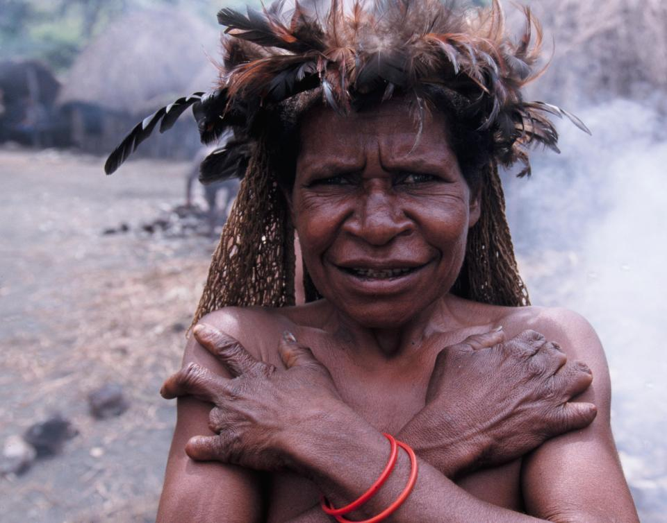 Hủ tục cắt ngón tay man rợ của bộ tộc Dani ở Indonesia-4