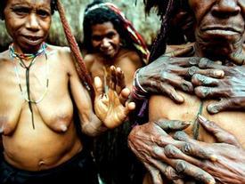 Hủ tục cắt ngón tay man rợ của bộ tộc Dani ở Indonesia
