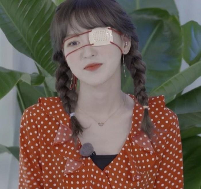 Pháo hoa bắn vào mắt, Wendy (Red Velvet) bị thương ngay thời điểm nhóm tái xuất-1