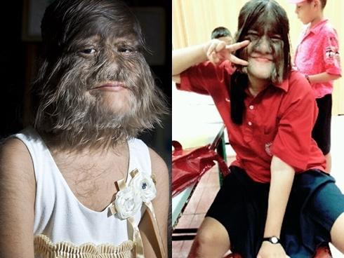 Mắc bệnh lạ, cô gái trẻ bị mọc râu lởm chởm khắp mặt-3