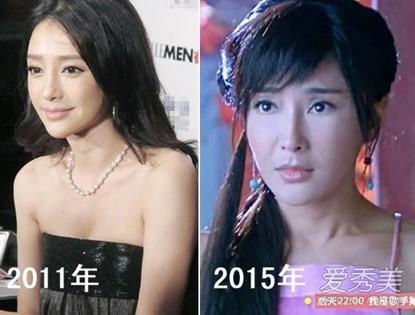 Phú Sát hoàng hậu Tần Lam trong Diên Hi Công Lược rõ ràng đẹp xuất sắc, nhưng sự thật trước khi dao kéo thì sao?-4