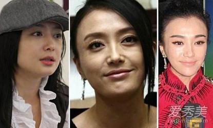 Phú Sát hoàng hậu Tần Lam trong Diên Hi Công Lược rõ ràng đẹp xuất sắc, nhưng sự thật trước khi dao kéo thì sao?-5