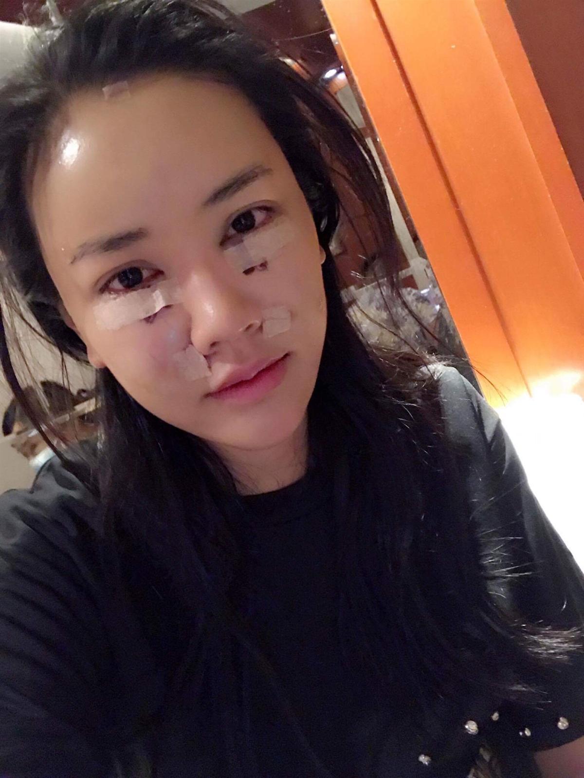 Ngoài Jun Vũ còn có 4 mỹ nhân khác dám công khai phẫu thuật nâng ngực khủng-11