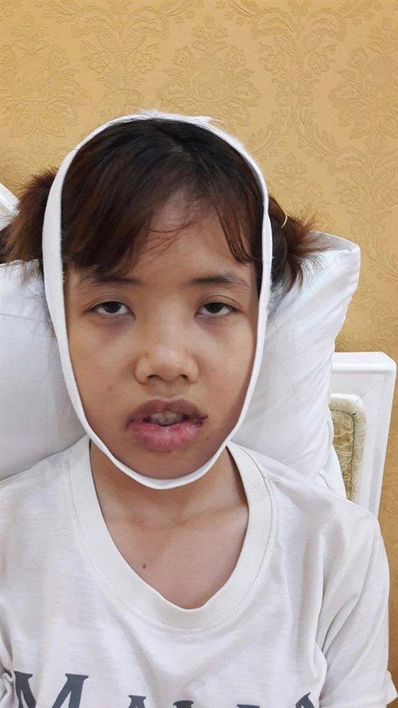 Từng có ý định tử tự vì bị ví Thị Nở thời hiện đại, cô gái đến từ Bắc Ninh quyết thẩm mỹ khiến người thân không nhận ra-4
