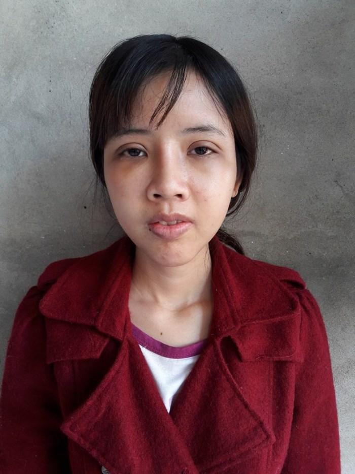 Từng có ý định tử tự vì bị ví Thị Nở thời hiện đại, cô gái đến từ Bắc Ninh quyết thẩm mỹ khiến người thân không nhận ra-3