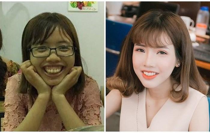 Từng có ý định tử tự vì bị ví Thị Nở thời hiện đại, cô gái đến từ Bắc Ninh quyết thẩm mỹ khiến người thân không nhận ra-1