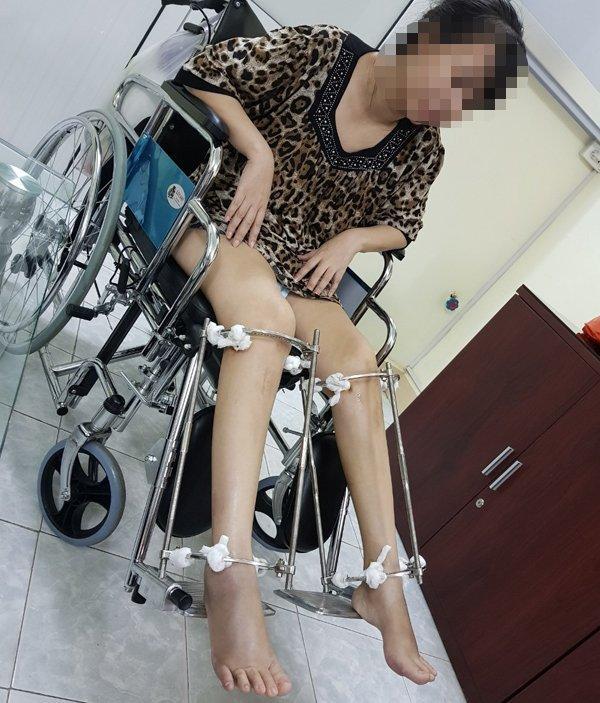 Bác sĩ kể ca kéo dài chân của cô gái Hà Nội cao 1m38-2