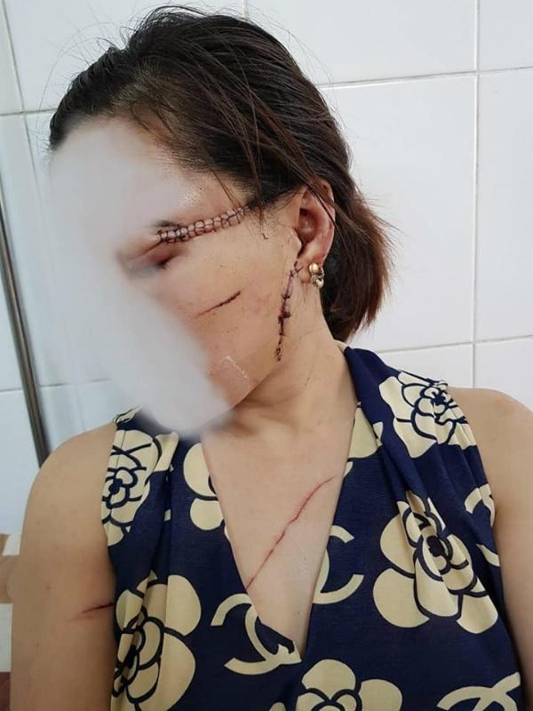 Bắc Giang: Vợ tố chồng nhẫn tâm dùng dao rạch nát mặt vợ vì ghen tuông-1