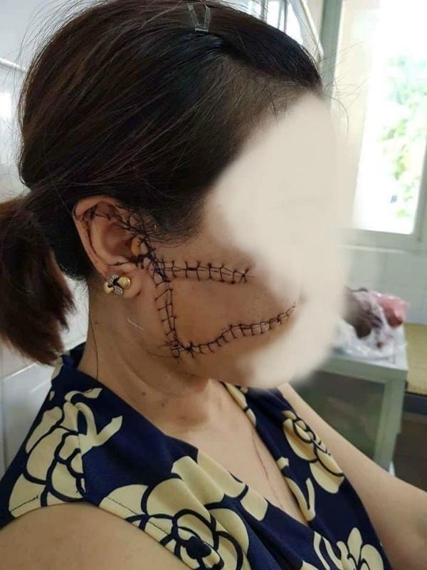 Bắc Giang: Vợ tố chồng nhẫn tâm dùng dao rạch nát mặt vợ vì ghen tuông-2