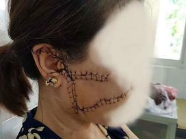 Bắc Giang: Vợ tố chồng nhẫn tâm dùng dao rạch nát mặt vợ vì ghen tuông