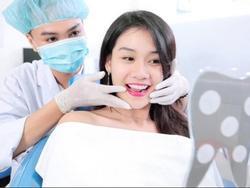 Bọc răng sứ - Bí quyết sở hữu nụ cười đẹp của giới trẻ